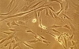 Fibroblast-celler.